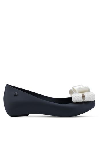 Melissa 黑色 Melissa Ultragirl Sweet XV Ad 平底鞋 83130SHD8165ABGS_1